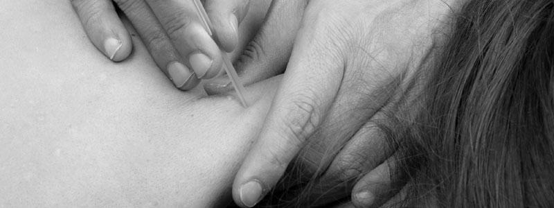 dry needling van-den-langemheen-fysiotherapie-manuele-therapie